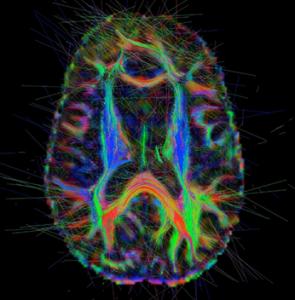 brainblack